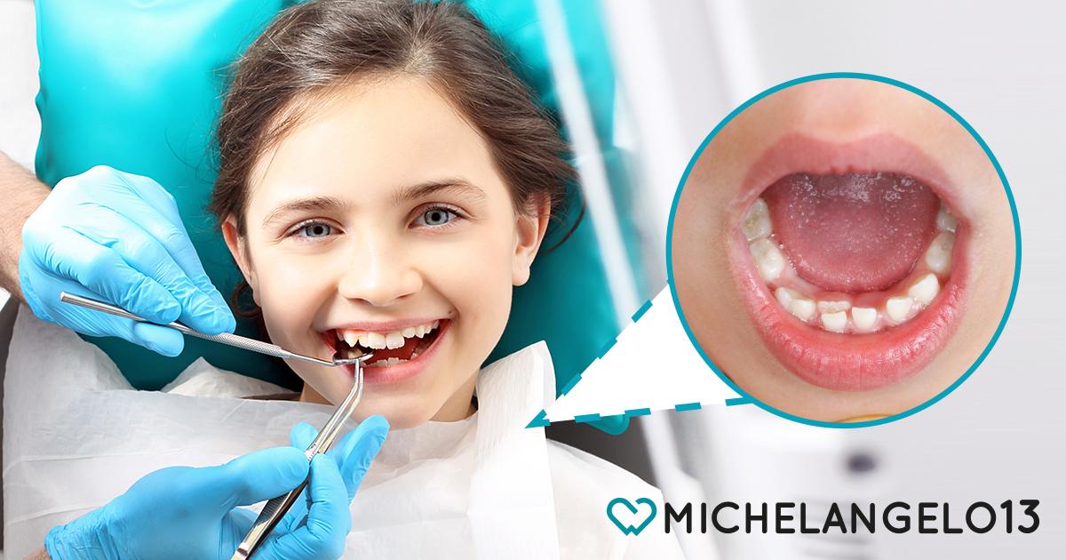 denti-doppia-fila