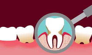 cura della parodontite al vomero napoli