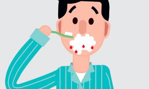 sanguinamento gengivale dentista vomero napoli